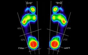baropodometria posturologica