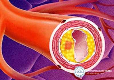 arteriopatia-obliterante