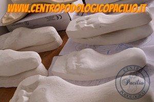 calco gessato piede plantare Dottor Pacilio Antonio