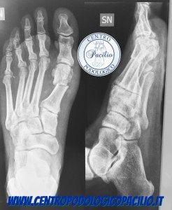 radiografie piede napoli centro podologico Prof. Dr. antonio Pacilio