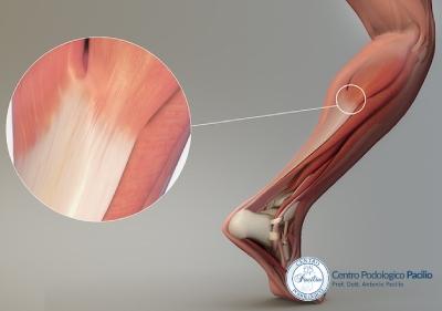 tendinopatia-inserzionale