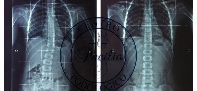 Centro_podologico_Pacilio_Podologo_Posturologo_anca_cura_postura_paziente