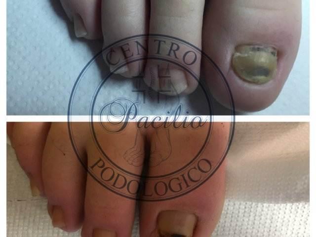 Centro_podologico_Pacilio_Podologo_Posturologo_piede_alluce_micosi_napoli