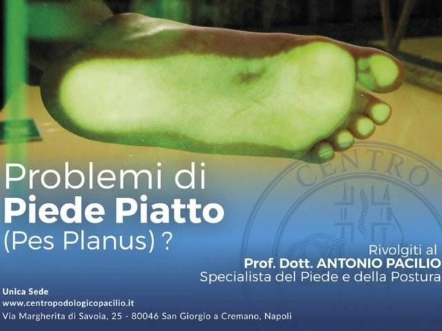 cura_piede_piatto_centro_podologico_Pacilio