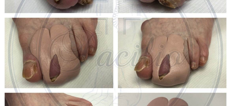 ortesi in silicone piede diabetico