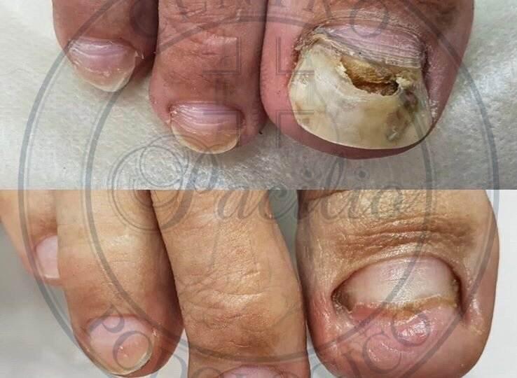 unghia distrofica napoli