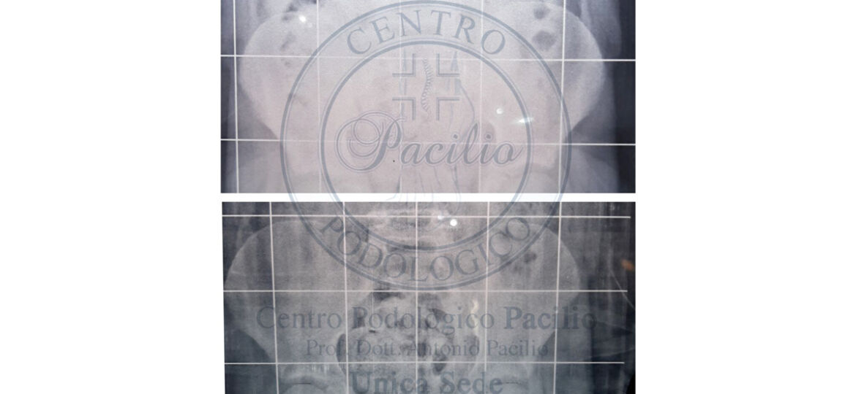 pacilio-bacino-1